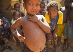 A child scarred by a tribal healer's treatment (Photo by Living Water International)